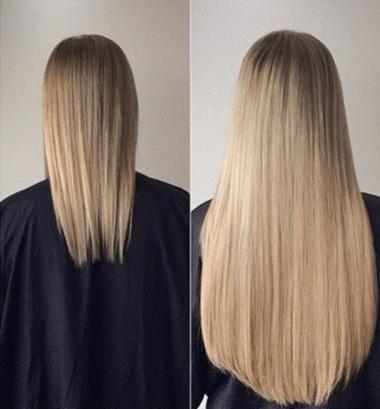 Head&Hair - prezzo - dove si compra - in farmacia - amazon