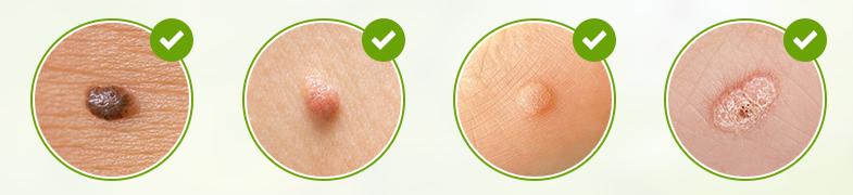 Skincell Pro - prezzo - dove si compra - in farmacia - amazon