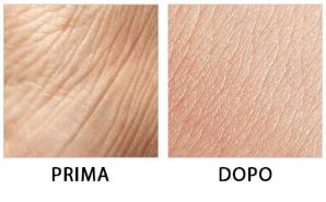 DermaVix - prezzo - dove si compra - in farmacia - amazon