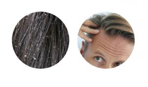 Pro-Hair 10 - Italia - originale - sito ufficiale