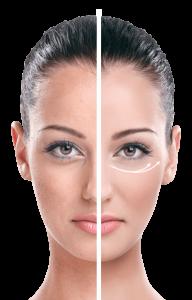 EyeLift - come si usa - funziona - composizione - ingredienti