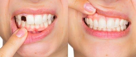 Happy Smile - composizione - ingredienti - come si usa - funziona