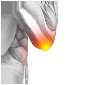 Osteodol - controindicazioni - effetti collaterali