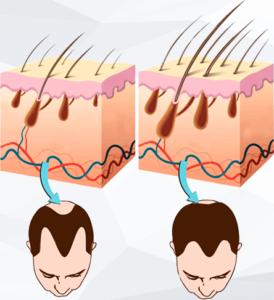 Lpe-Massager - funziona - come si usa
