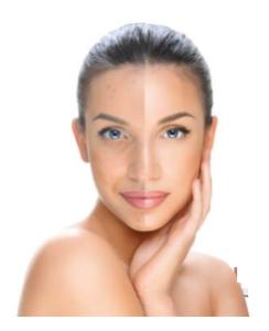 Clear Skin - sito ufficiale - Italia - originale