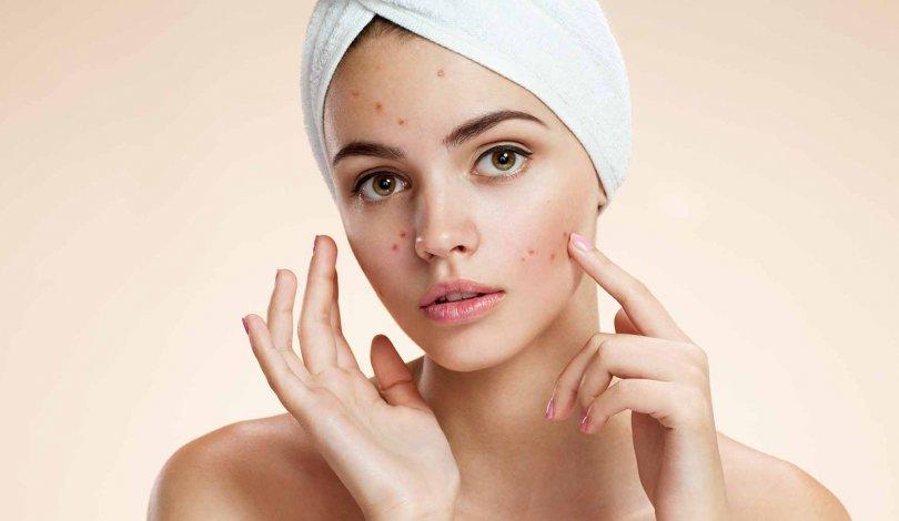 Skin Relax - come si usa - funziona