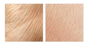 Nolatreve Skin - Italia - sito ufficiale - originale