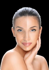 Hyaluronic Face - funziona - composizione - come si usa - ingredienti