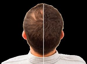Hair Intense - effetti collaterali - controindicazioni