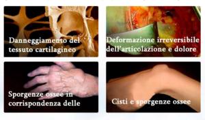 Arthromagic - ingredienti - come si usa - composizione - funziona