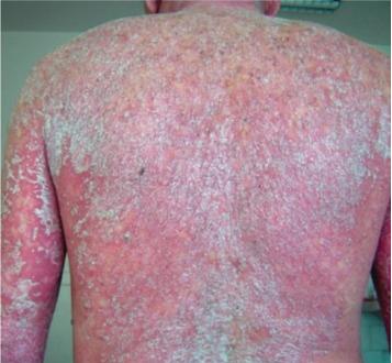 Sunsara Psoriasis - effetti collaterali - controindicazioni